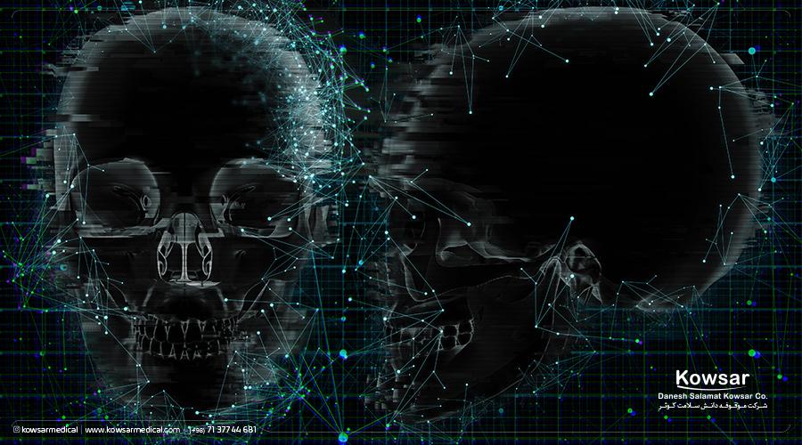 آناتومی جمجمه/ skull-anatomy/ راهنمای جامع آن